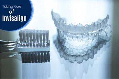 Invisalign orthodontic treatment