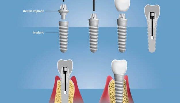 teeth-dental-implant